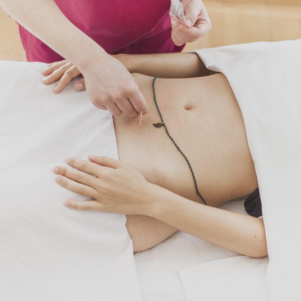 acupuntura-_MG_0210_mg_0210